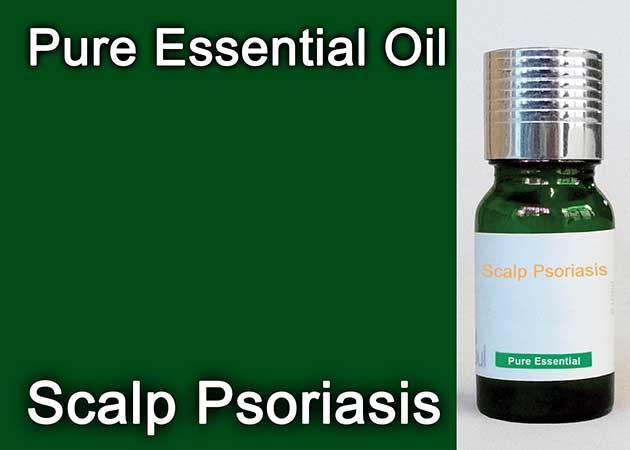 scalp psoriasis essential oil